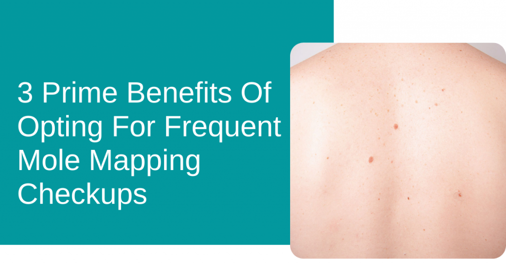 3 Prime Benefits Of Opting For Frequent Mole Mapping Checkups