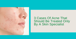 3 Cases Of Acne That Should Be Treated Only By A Skin Specialist